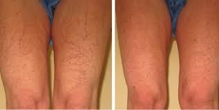 Method To Remove Spider Veins