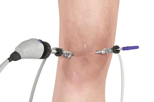 Arthroscope For Knee Treatment